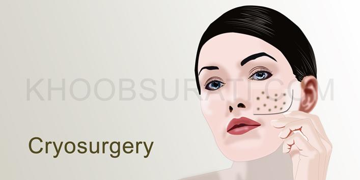 cryosurgery707_354