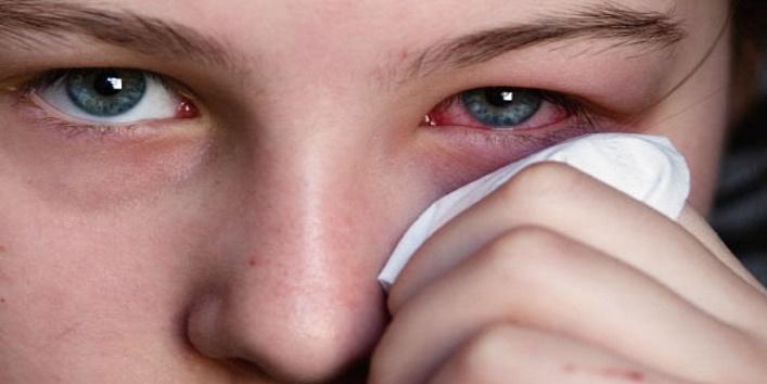 Benefits of Castor Oil for Eyes 6