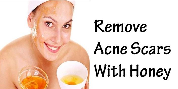 Honey for an effective acne treatment