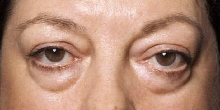 For-Under-Eye-Bags