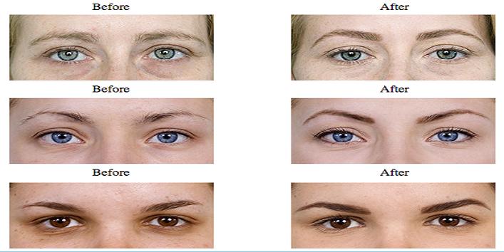 Redefine-your-eyebrows