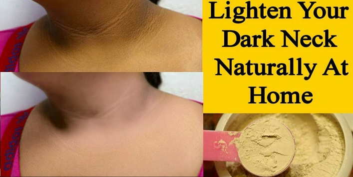 how to get rid of dark neck from diabetes