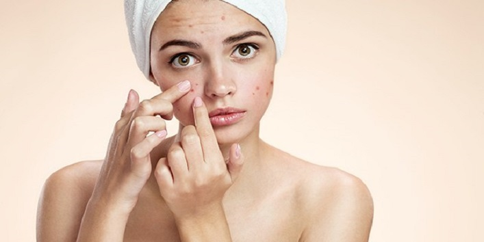 Treats breakouts and acne