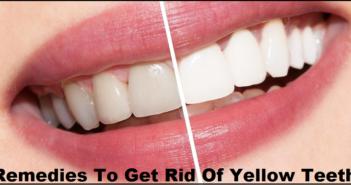 Get Rid of Yellow Teeth