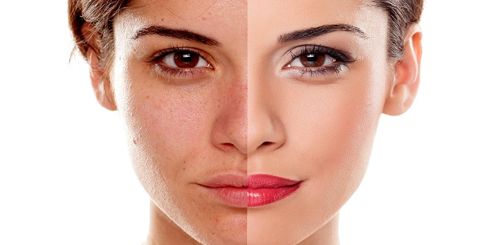 Ways to Brighten Your Skin