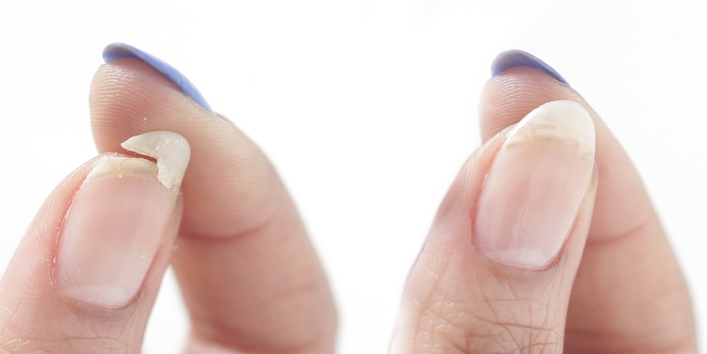 Get Rid of Chipped Nails