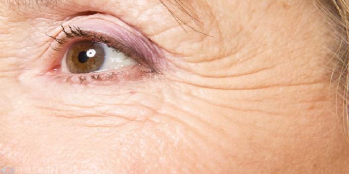Treats wrinkles
