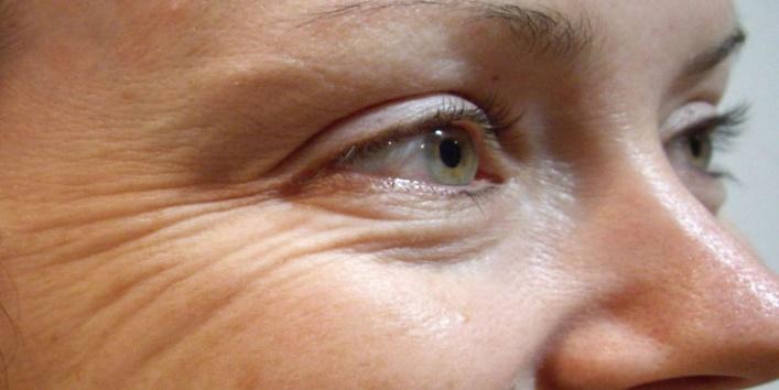 Helps in treating sagging skin and wrinkles