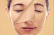 Do's and Don'ts for Dry Skin