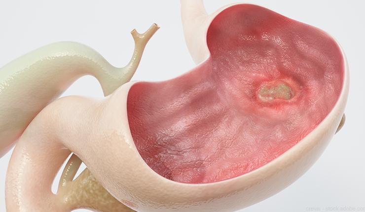 Aggravates-Ulcers