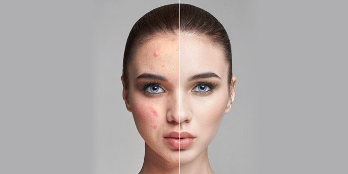 Cures-Acne