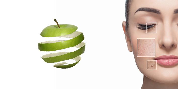 Treats-acne-and-dark-spots