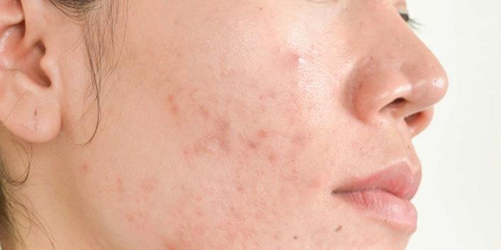 For-removing-dark-spots