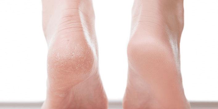Heals-Cracked-Heels