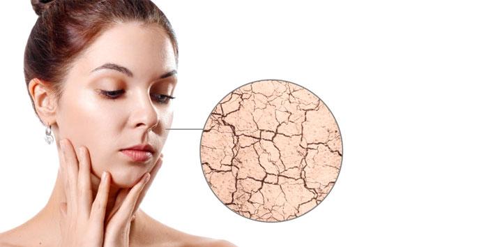 Exfoliation-For-Dry-Skin