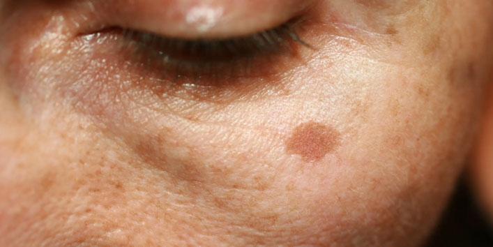 Exfoliator-Reduces-Hyperpigmentation