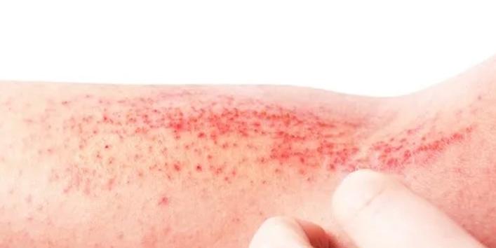 Prevents-atopic-dermatitis