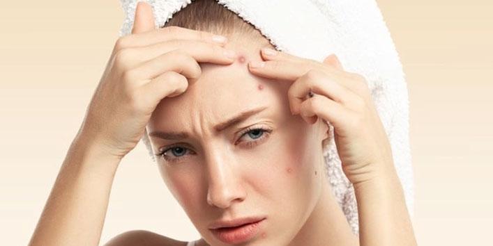 Treats-acne