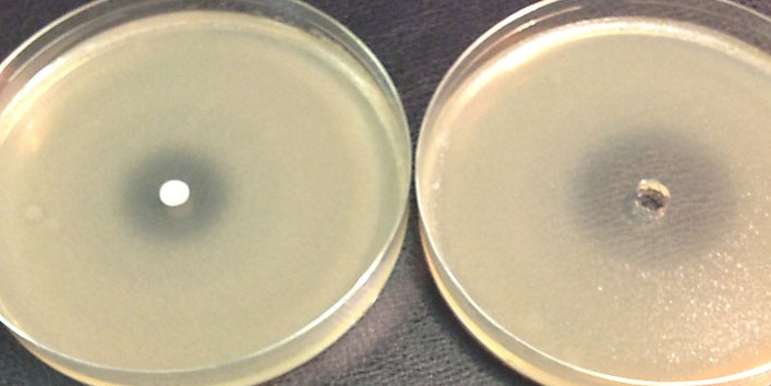 Antimicrobial-properties-of-garlic