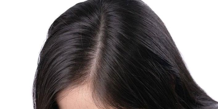 Keeps-hair-scalp-clean