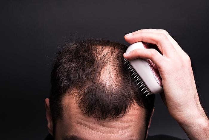 Treats-baldness
